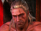 The Witcher 2: PC gegen Konsole  der Grafikvergleich