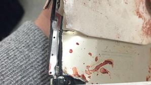 Manchester-Anschlag: Zerstörtes iPhone ©facebook / Steve Bridgett