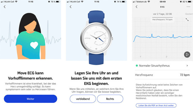 Withings Move © Screenshot Health Mate / COMPUTER BILD