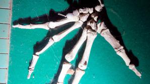 Teil eines Skeletts©Polizei Euskirchen
