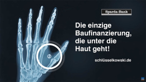 NFC-Implantat der Sparda-Bank Berlin©Sparda-Bank Berlin