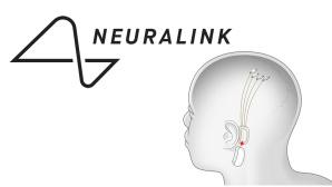 Neuralink Aktie