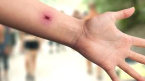 Ein Mikrochip in einem Arm©iStock.com/kmatija